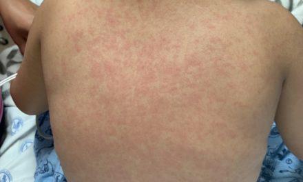 Confirman 30 casos de sarampión en CDMX