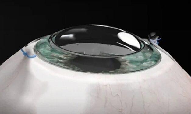 Le implantan córnea sintética y recupera la vista